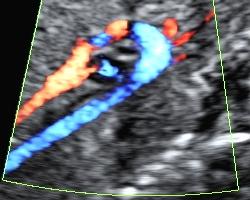 Aortální oblouk